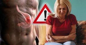 Read more about the article Ganglion lymphatique élargi: quand est le signe avant-coureur d'une tumeur?