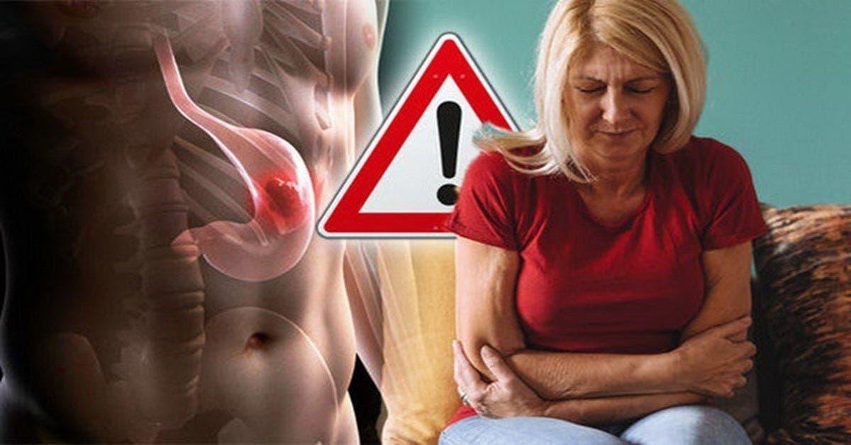 Ganglion lymphatique élargi: quand est le signe avant-coureur d'une tumeur?